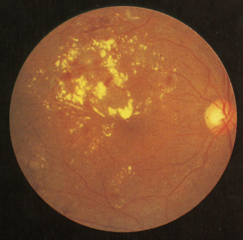 網膜分枝静脈閉塞後に見られる硬性白斑